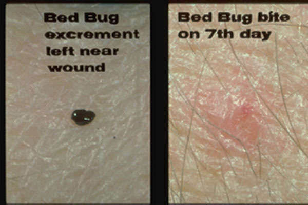 Common Bed Bug
